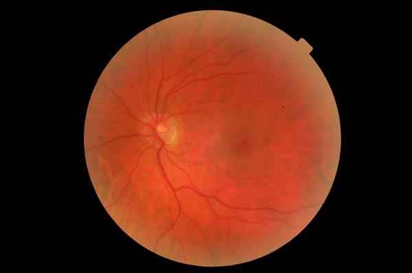 glenda's eye